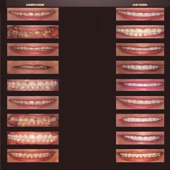 Celebs Discover Cosmetic Dentistry Before & After Celebrity Smiles Best Dentist Cosmetic Dentistry