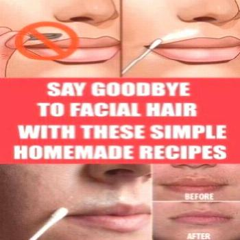 Say Goodbye To Facial Hair SAY GOODBYE TO FACIAL HAIR FOR GOOD WITH THESE SIMPLE HOMEMADE RECIPES!