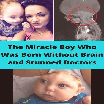 The Miracle Boy Who Was Born Without Brain and Stunned Doctors  miracle#doctors#miracle baby born w