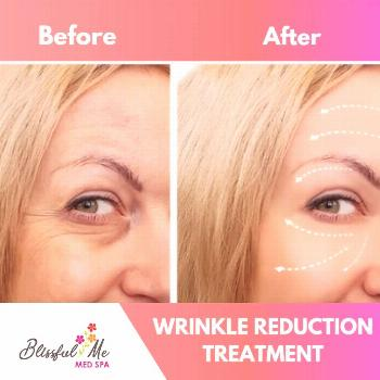 With anti-wrinkle injections, our experienced doctors can create a natural-looki... -