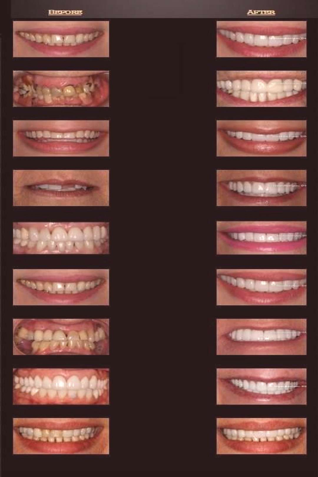 Celebs Discover Cosmetic Dentistry Before amp After Celebrity Smiles Best Dentist Cosmetic Dentistry