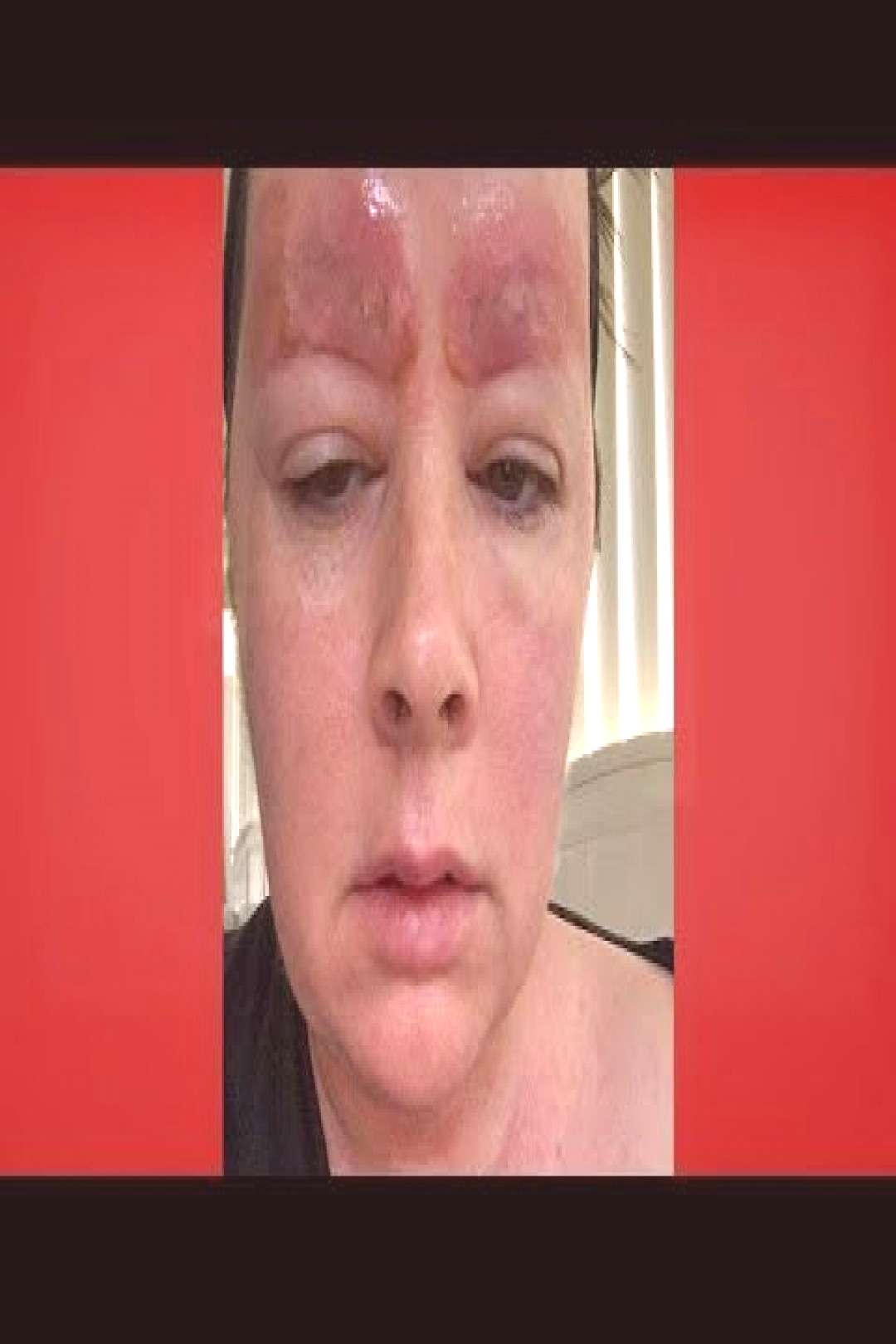 Could that happen to you ?: Microblading Gone Wrong | The doctors ,  Could that happen to you ?: Mi