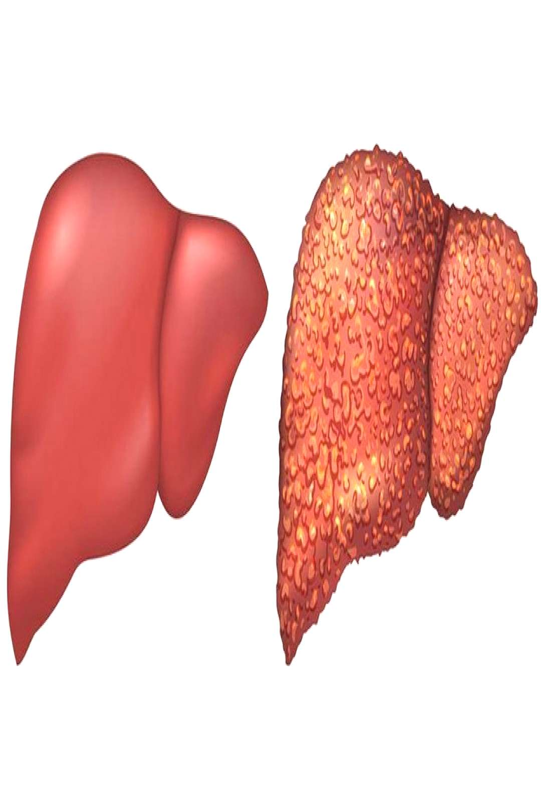 Differentiating Acute and Chronic Liver Diseases  Course Curriculum CME on Differentiating Acute an