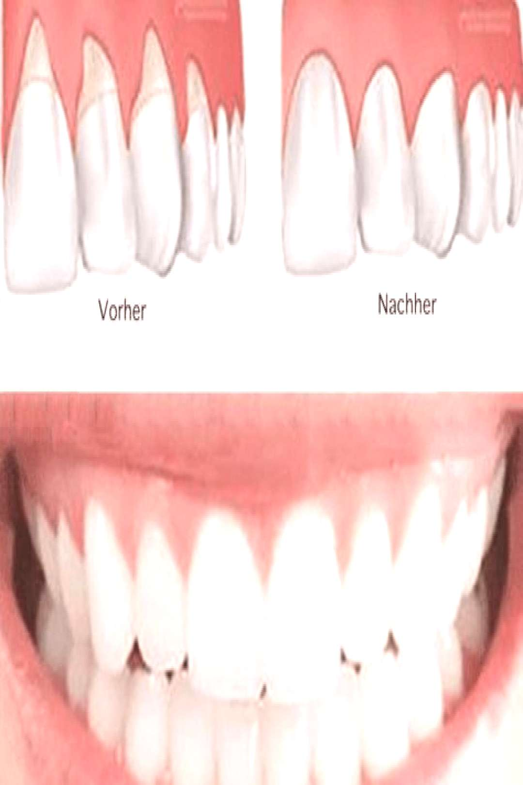 DMSO - Ignored by doctors, concealed by the pharmaceutical industry -  DMSO gums. Tip: Brush your t
