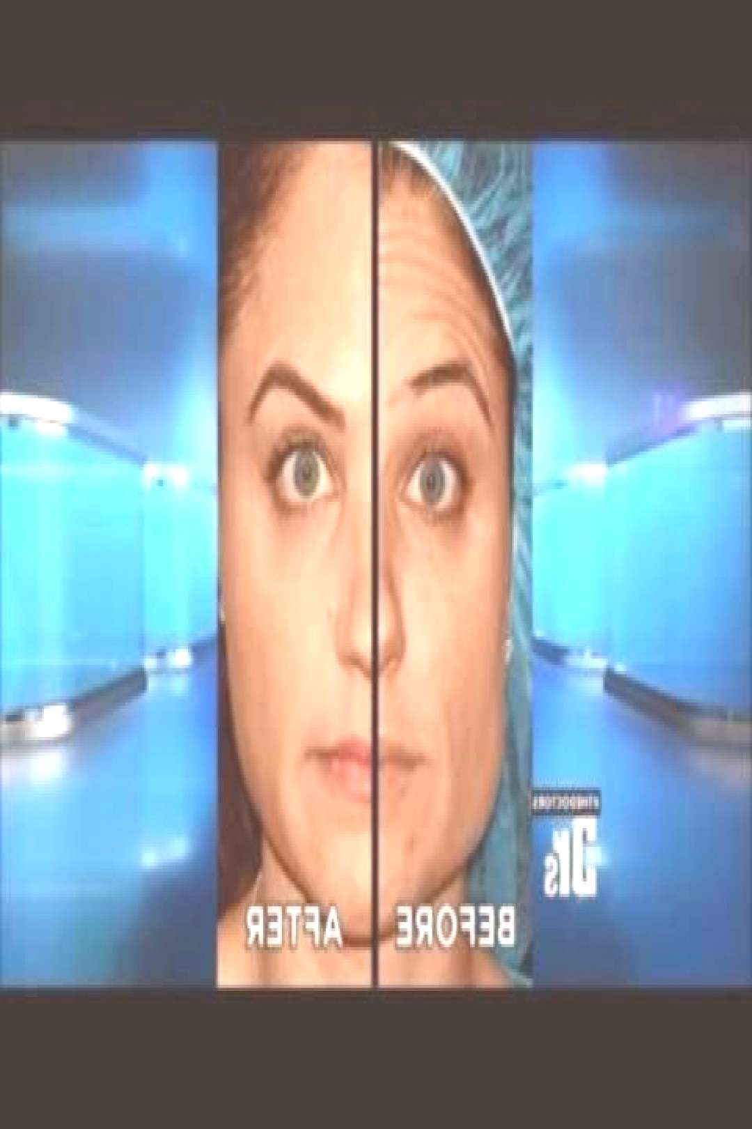 Dr Groff Treats Frown & Forehead Wrinkles with ThermiRase on The Doctors  YouTu#...#doctors